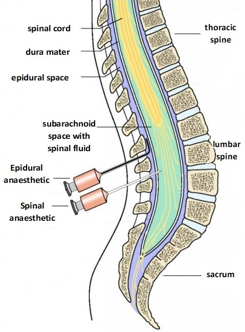 List of Synonyms and Antonyms of the Word: spinal anaesthetic