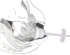 Vacuum and Forceps - Vacuum Cup