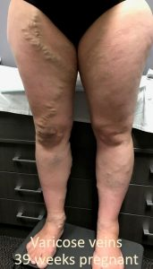 Varicose Veins at 39 Weeks Pregnant