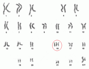 Miscarriage – Karyotype checking
