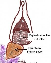 An episiotomy that went wrong