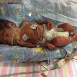 Successful Delivery of Premature Baby