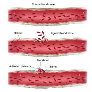 Blood Clot Disorder