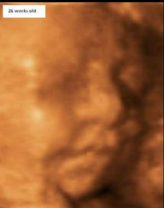 Foetal 26 Weeks Scan 3d