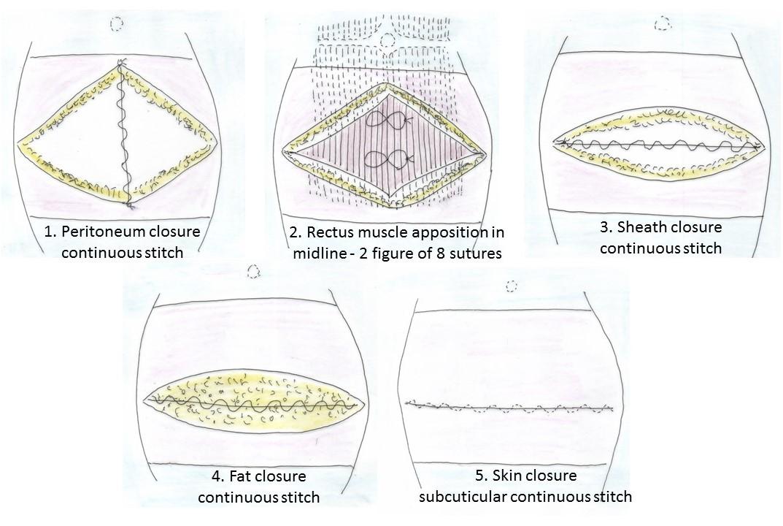 Caesarean Section Process