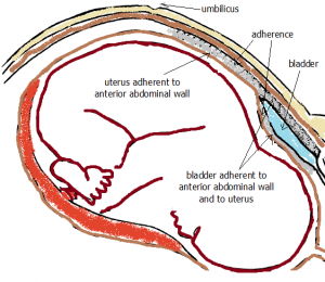 Anterior Abdominal Wall with Uterus Adherent