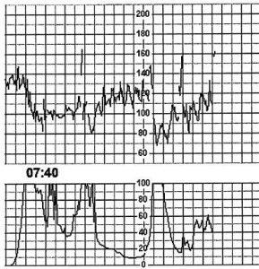 VBAC - Cardiotocogram (CTG)