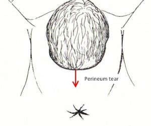Perineal Tearing at Delivery
