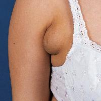 Armpit Lumps in Pregnancy