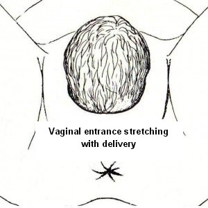 Vaginal Looseness Postnatally