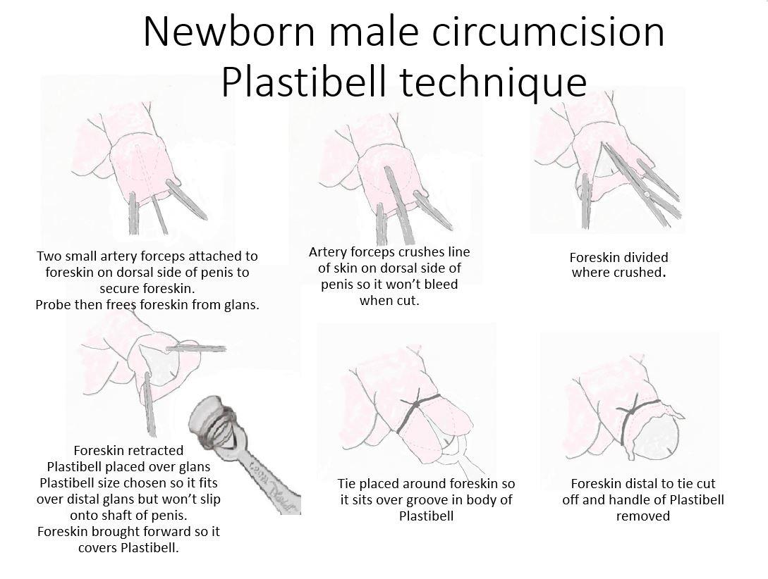 Male Circumcision - Plastibell Technique