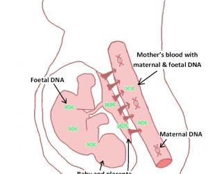 Non-Invasive Prenatal Test (NIPT)