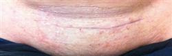 Caesarean Section - Scar